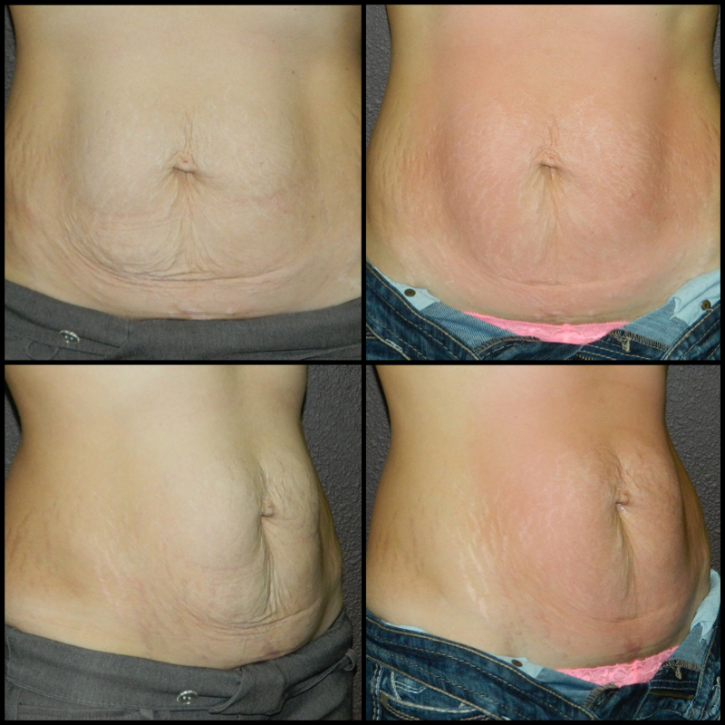 Full Abdomen (Skin Tightening) - 6 Treatments