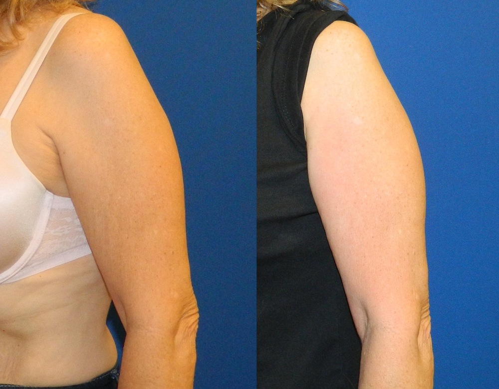 Upper Arms (Skin Tightening) - 6 Treatments