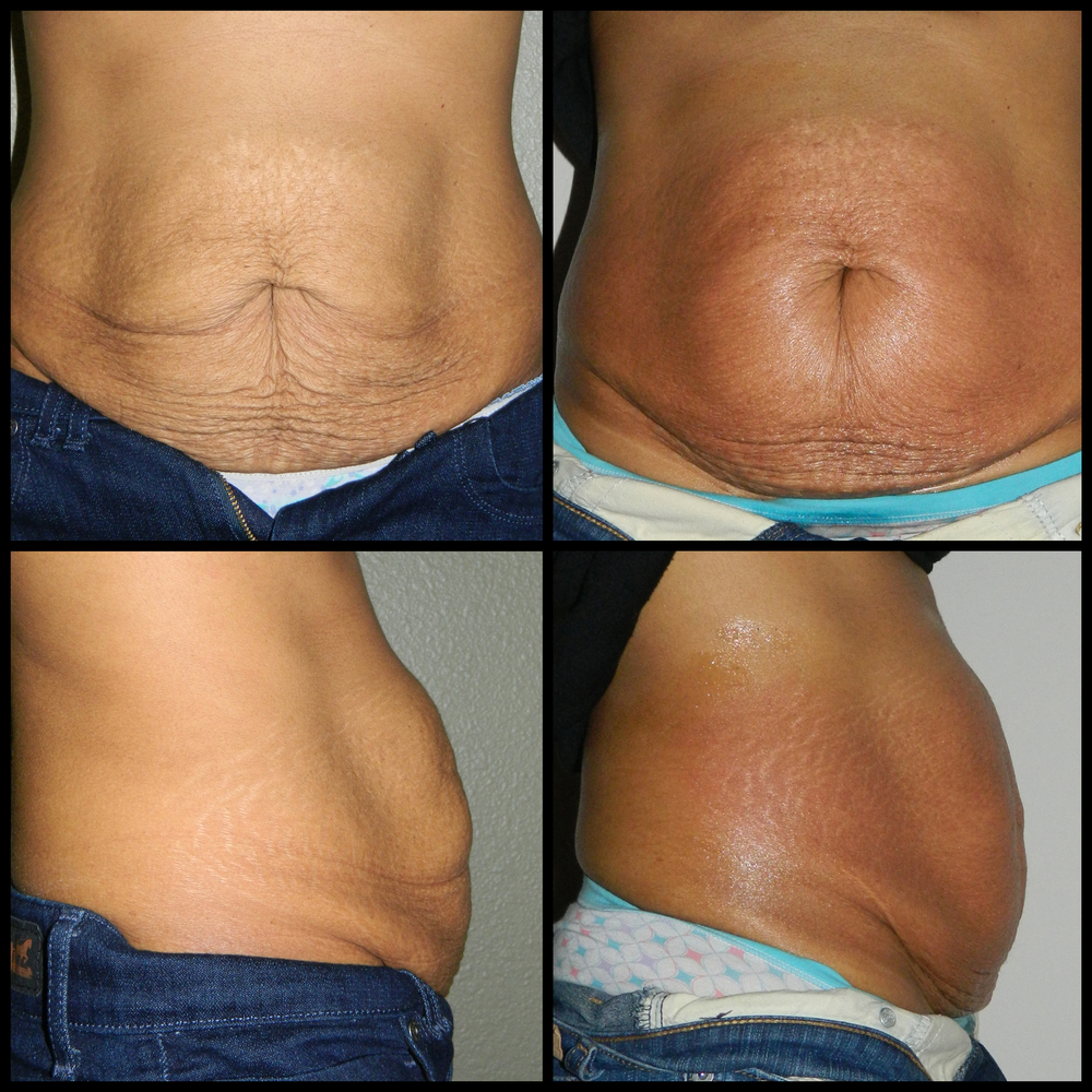 Abdomen (Skin Tightening) - 5 Treatments