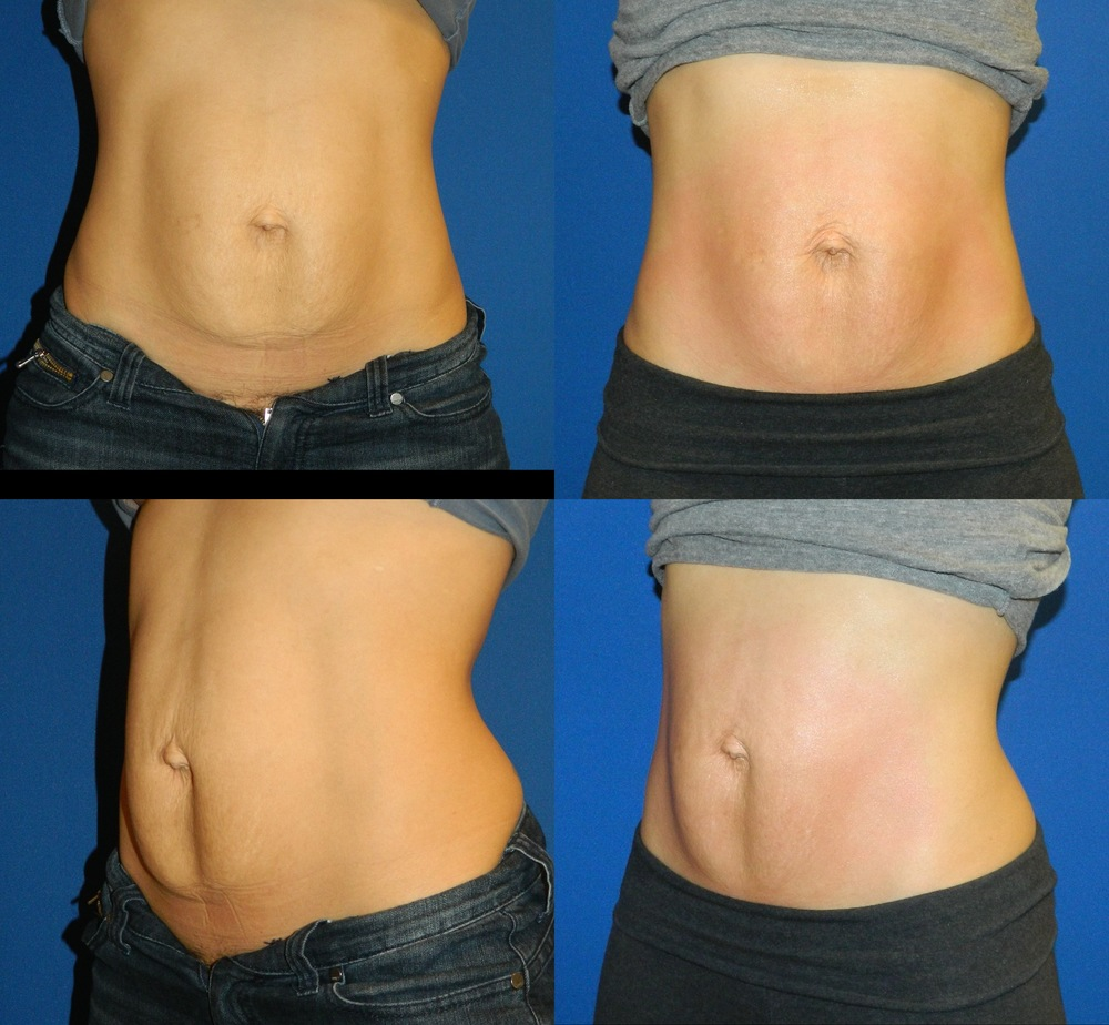 Abdomen (Skin Tightening) - 6 Treatments