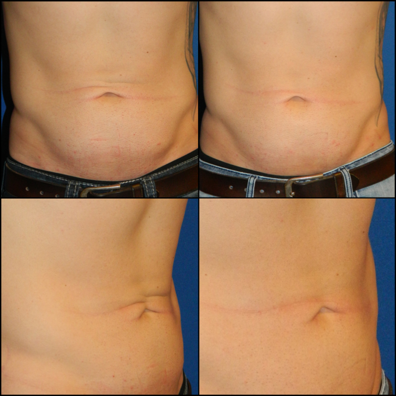 Abdomen (Skin Tightening) - 3 Treatments