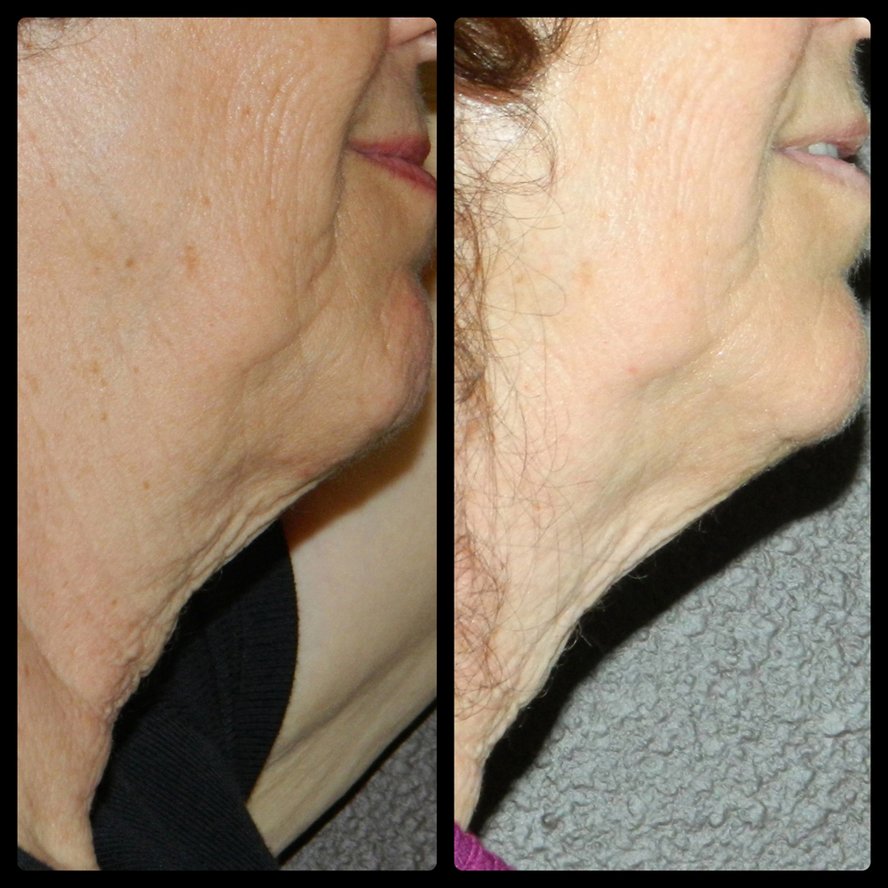 Neck - 3 Treatments