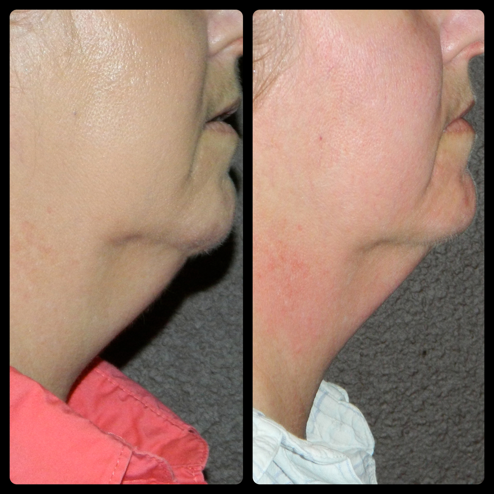 Jowls - 6 Treatments