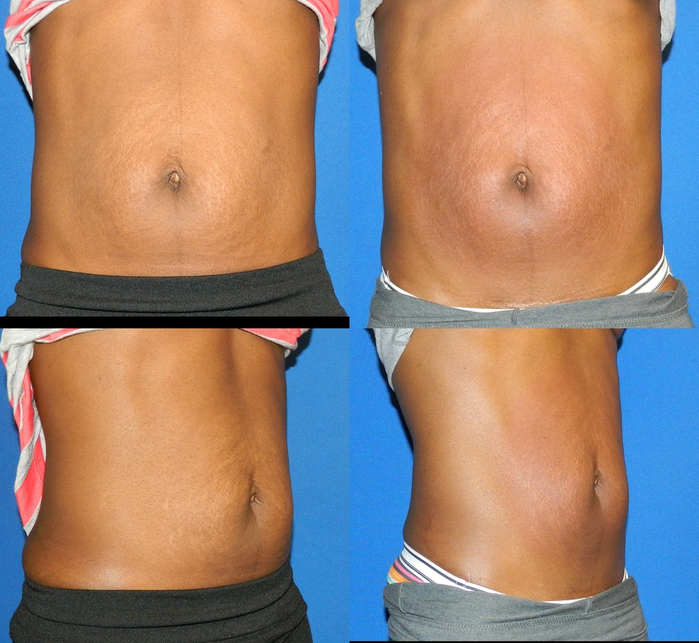 Abdomen (Skin Tightenting) - 6 Treatments
