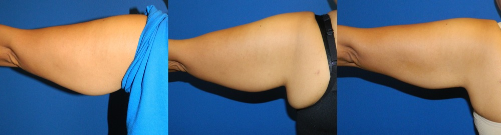 Upper Arms (Skin Tightening) - 10 Treatments