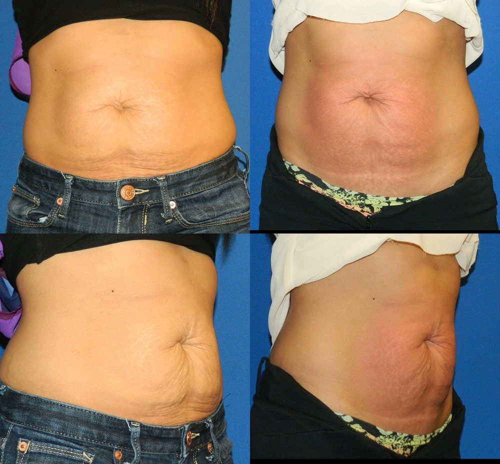 Full Abs (Skin Tightening) - 6 Treatments