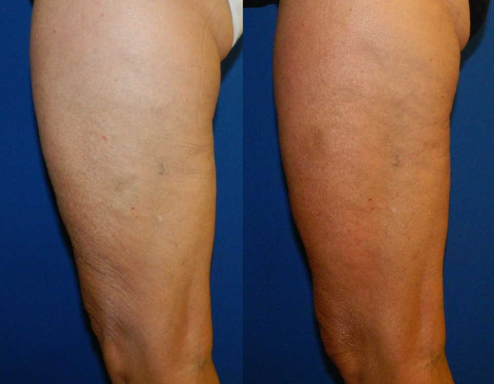 Thighs (Skin Tightening) - 6 Treatments