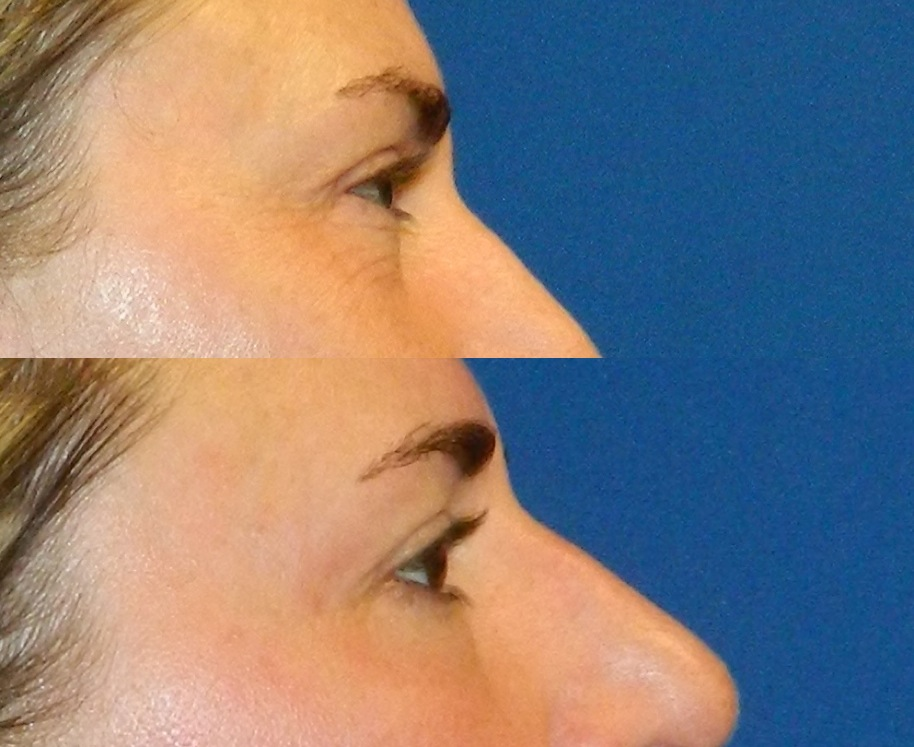 Upper Face (Skin Tightening) - 6 Treatments