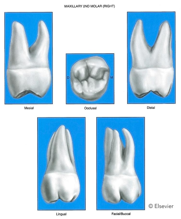 R 2nd max molar.jpg