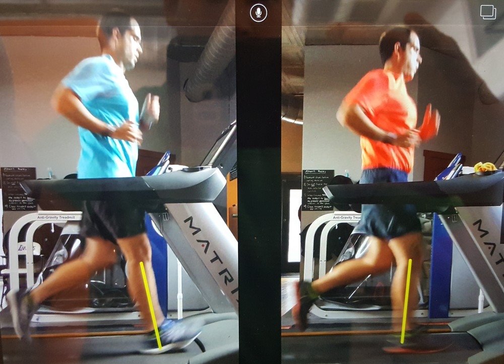 Left image @ Initial Run Analysis.  Right Image @ Follow-up Visit.  Left image = Heel strike, long step length.  Right image = Midfoot strike, short step length.   Note:   T  he arm, hand, and left leg are positioned in the exact position for each image, indicating that the image from the follow-up visit was captured at the same initial moment of contact as the image from the initial analysis.