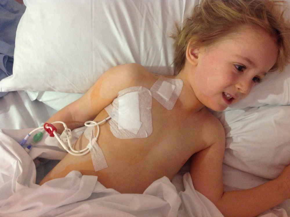 Hickman Line - vascular catheter inserted directly into the heart to maximise flow of drugs around the body.