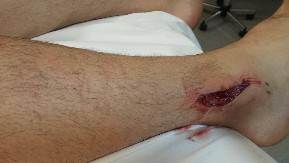 The gash caused by the rocks at Mont Saint-Michel. This is the state of Dan's ankle in hospital.
