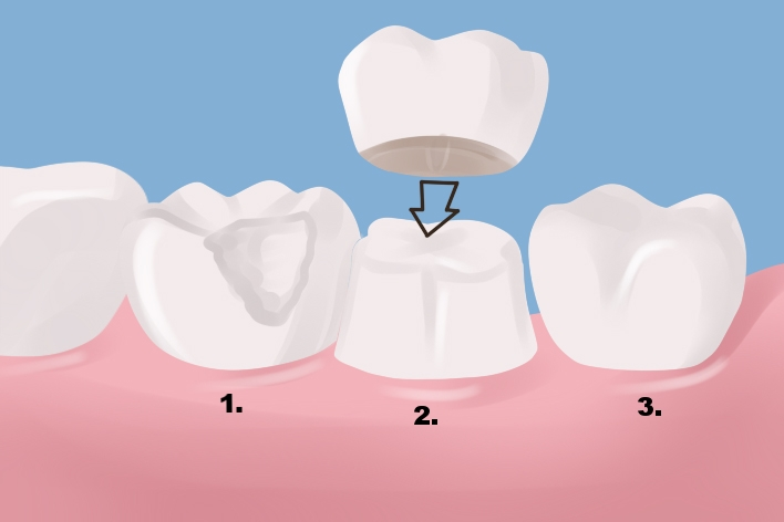 1. Broken tooth either through decay or fracture requires crown.    2. Tooth is reshaped to allow placement of crown.   3. Crown fabricated in lab is cemented into place protecting the underlying tooth from further damage.