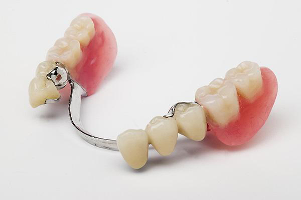 Partial Lower Chrome Denture