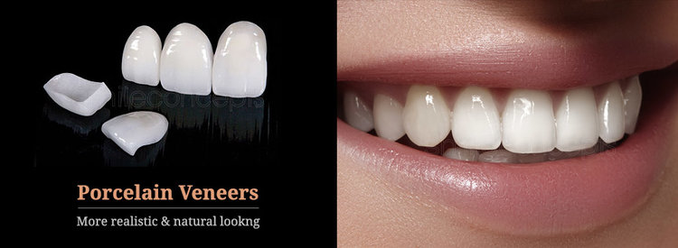why-porcelain-veneers (1).jpg