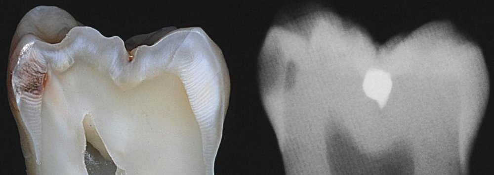 Cross-section of a decayed tooth and X-ray of the same tooth.