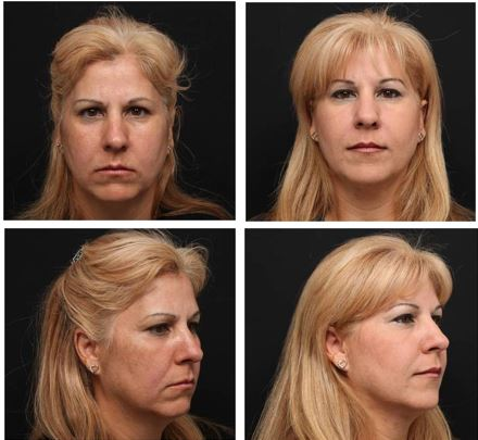 Botox and Restylane