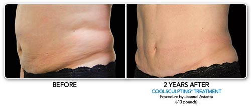coolsculpting2.jpg