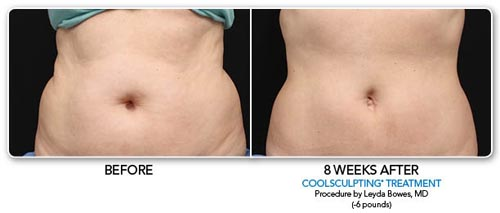 coolsculpting9.jpg