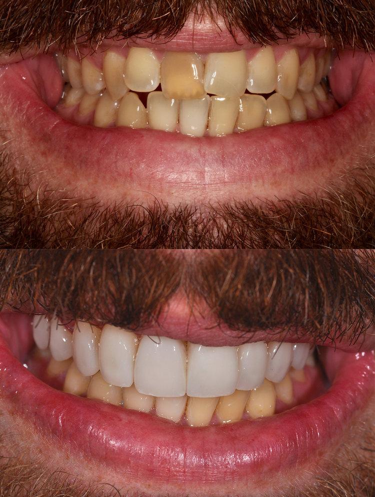 dentalceramicssideby.jpeg