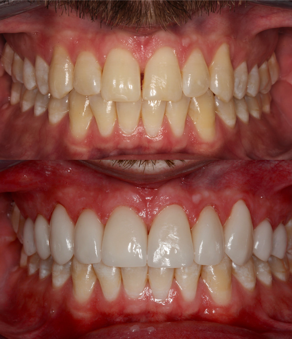dentalceramicslabworkhunsicker.jpg