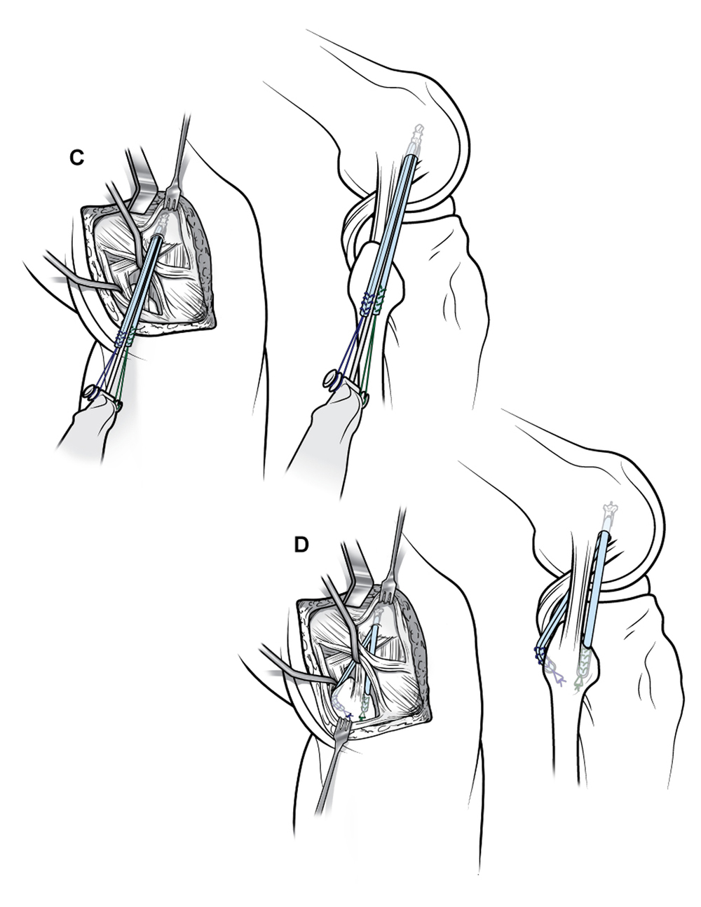 Posterolateral corner reconstruction.