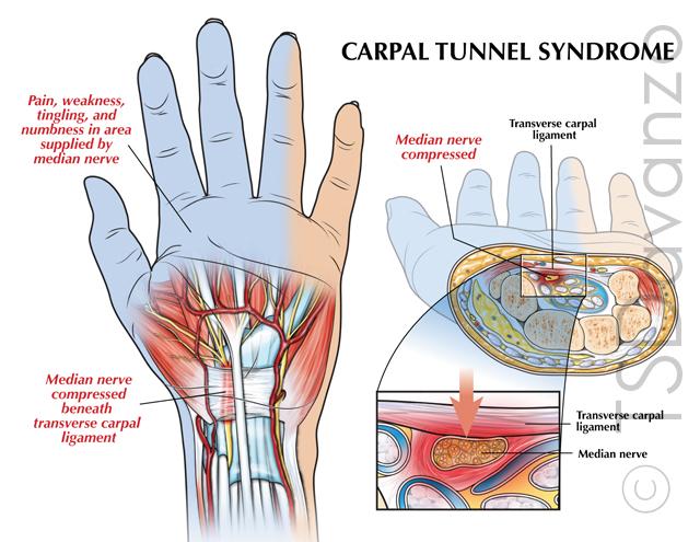 Carpal tunnel syndrome — Slaybaugh Studios