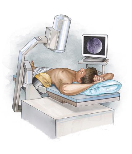 lithotripsy.jpg