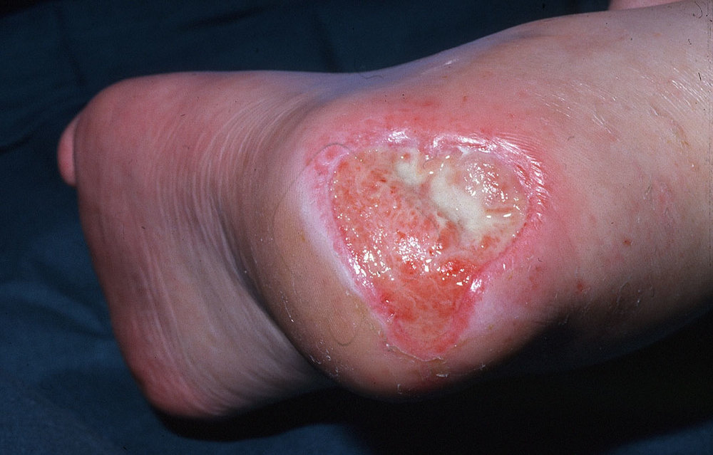 Heel ulcers can be prevented with appropriate pressure relief