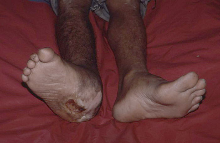 Foot ulceration can be prevented and prevention is far better than cure.