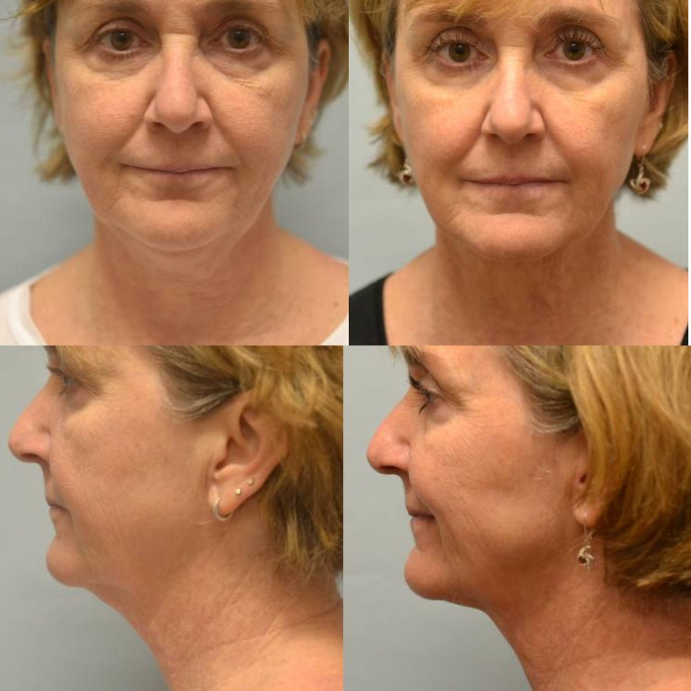 Ultherapy of the neck and lower face