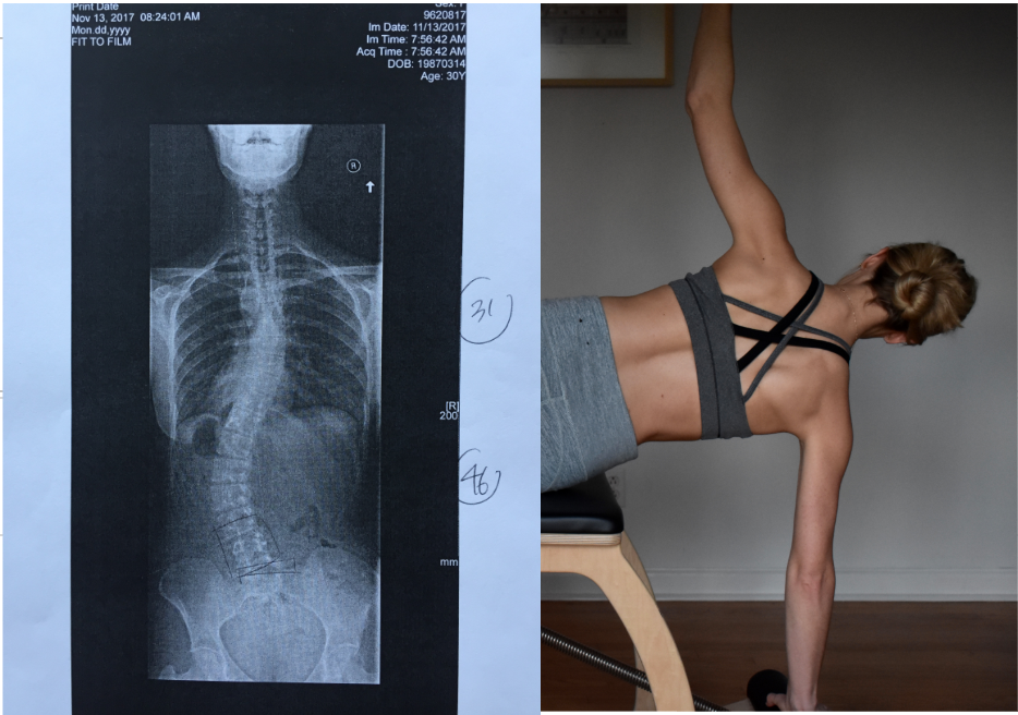 """I also write about this image in the   """"why Pilates ?  """" page as the later phase of training."""