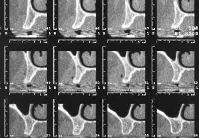 Cone Beam CT SCANS