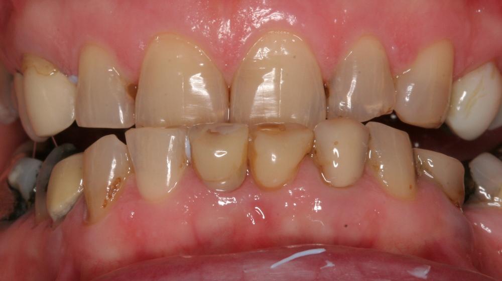 Worn discoloured broken teeth