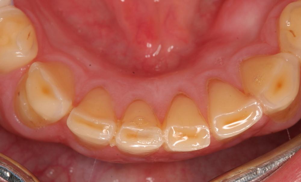 Worn discoloured lower teeth