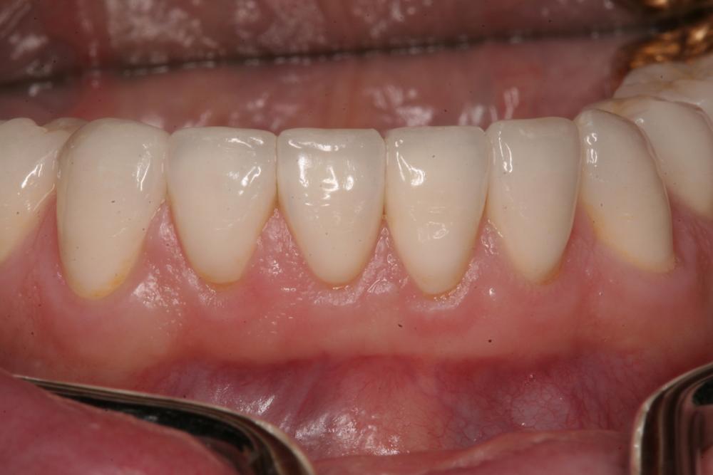 Reconstucted lower teeth
