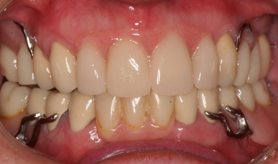 New Upper & lower part dentures