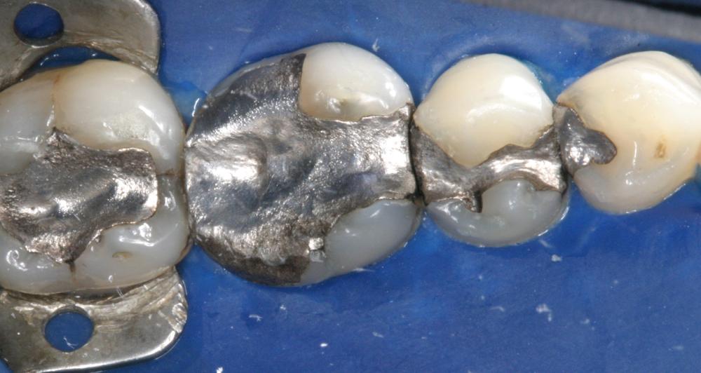 Old Amalgam restorations