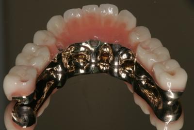 Full implant bridge