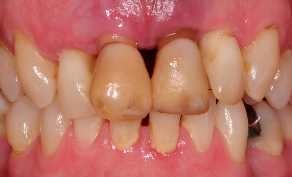 4 upper front teeth failing