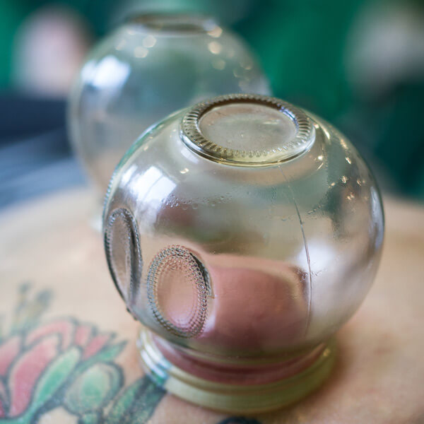 Cupping-Services.jpg