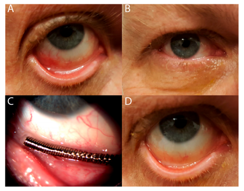 Example of what the sensor looks like in the lower eyelid.