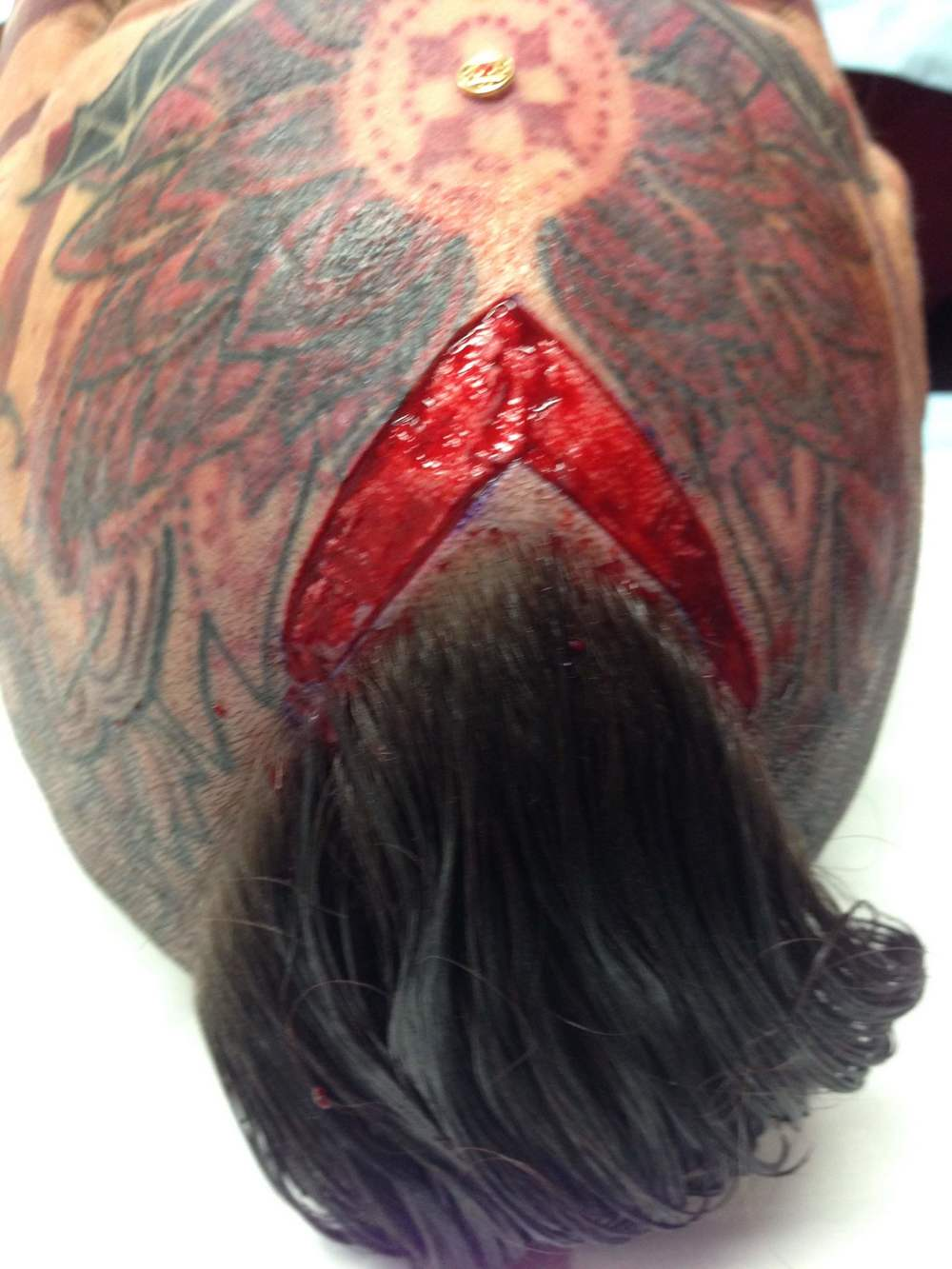 Scarification.  (The 4th Wall, stories of tattoos & body modification, by Fareed Kaviani: www.the4thwall.net)