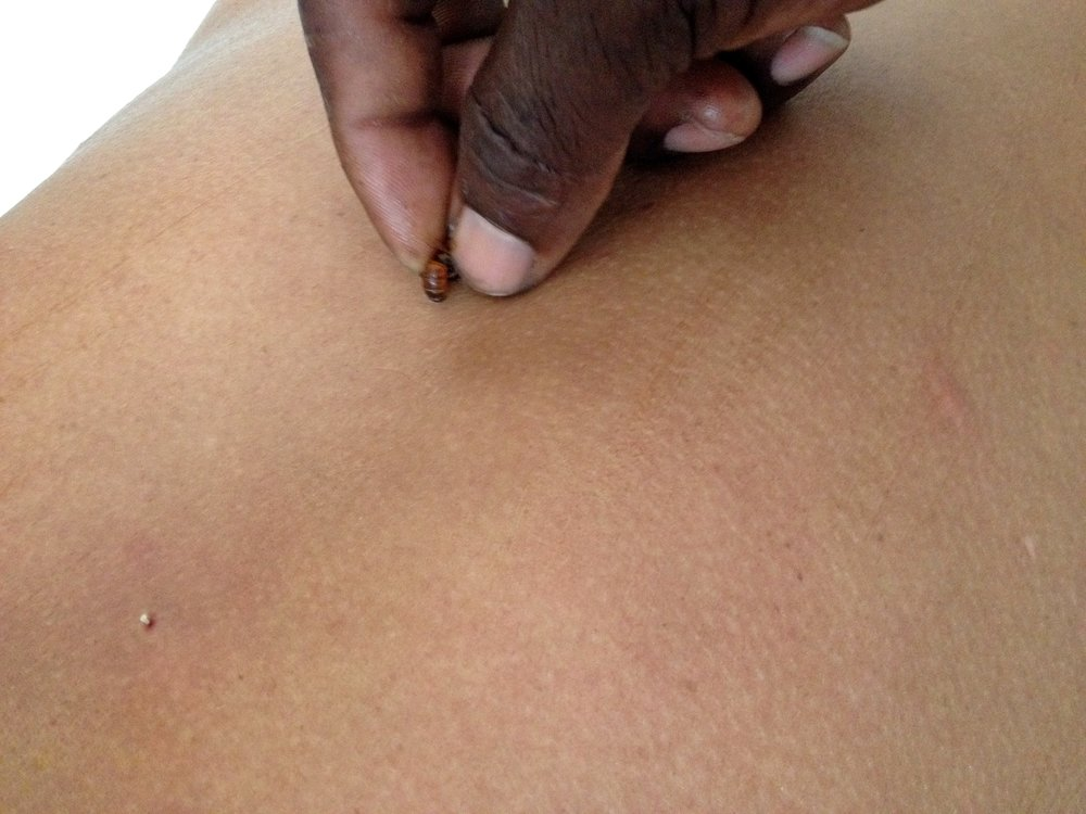 Grenada Bee Sting Therapy.jpg