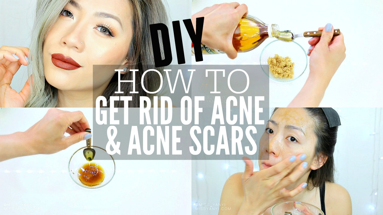 how to get rid of acne on my face