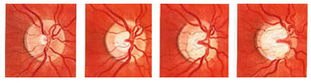 Glaucoma Optic Nerve Progression