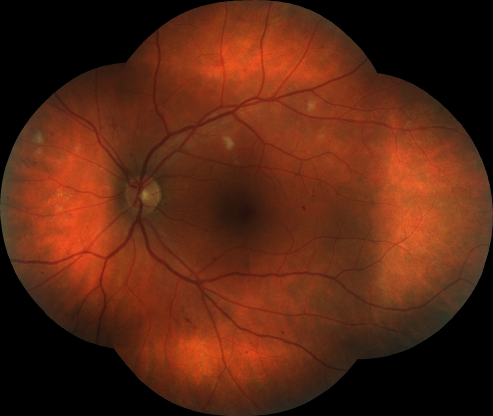 Diabetic Retinopathy with presence of cotton wool spots | Eye Columbus