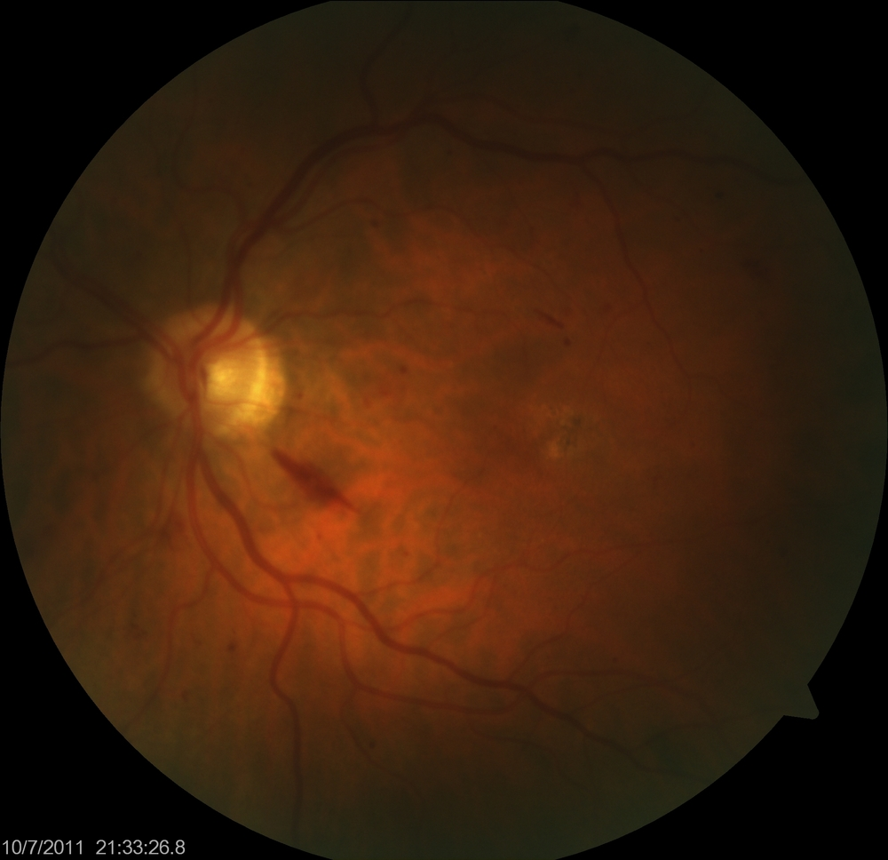 Diabetic Retinopathy + moderate Macular Degeneration | Eye Columbus