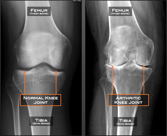 Normal Knee Radiograph The X-ray of a Normal Knee