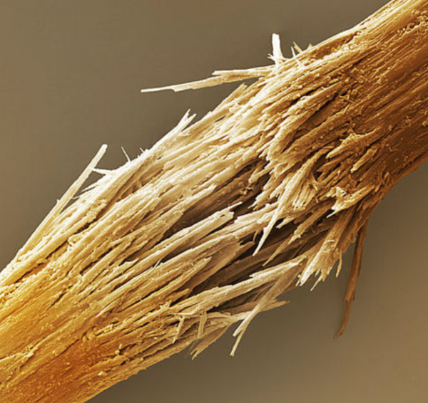 SEM image of partially torn human hair.